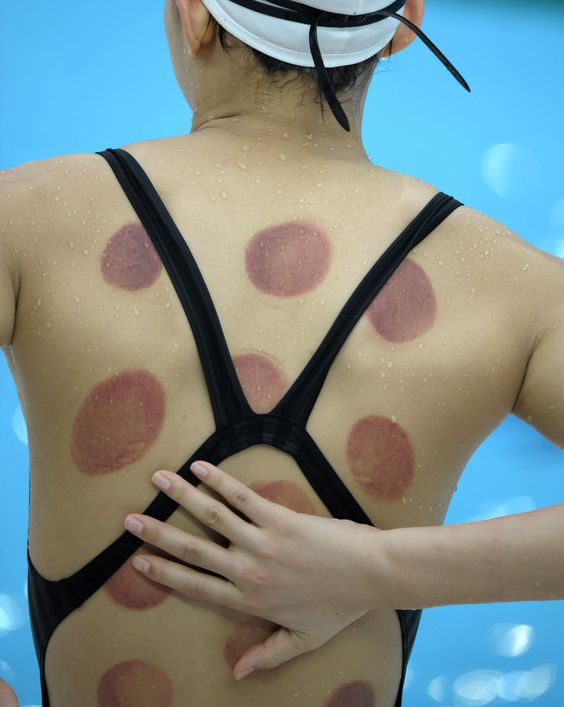 cupping massage therapy athletes